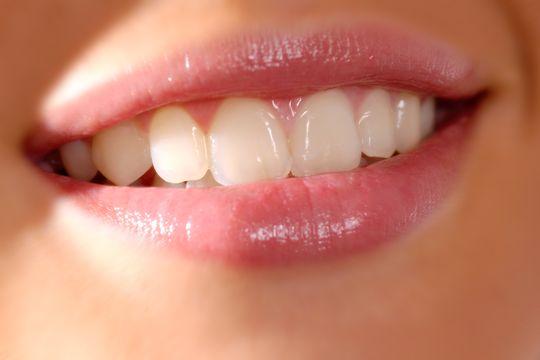 【牙齒膿腫治療】孕婦智慧齒生膿腫延遲治療 細菌擴散至大腦險喪命