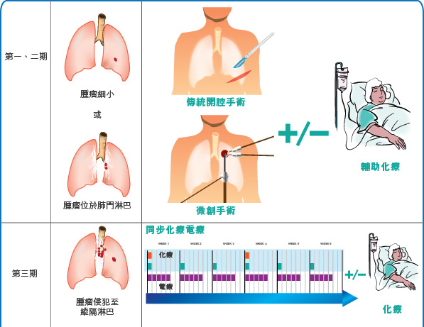 lung cancer treatment 1