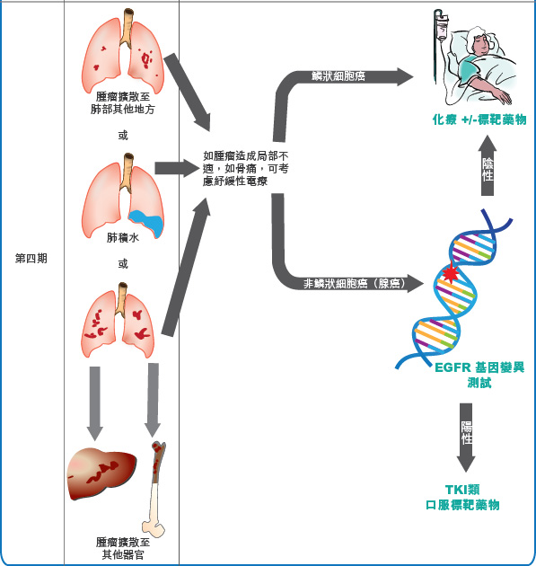 lung cancer treatment 2