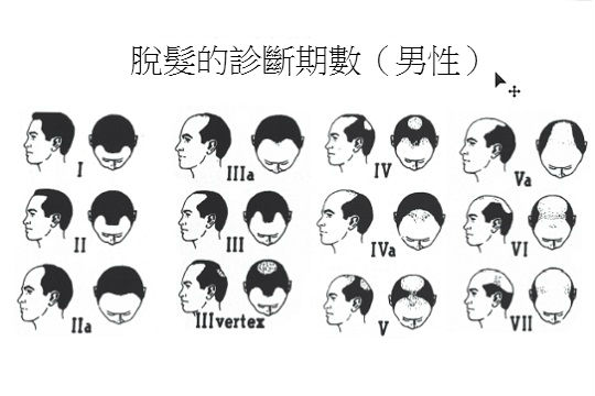 洗頭水無助生髮 防脫育髮言過其實