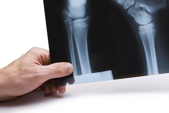 幹細胞革命 膝關節軟骨再生有望
