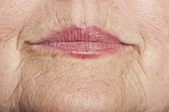 3招防唇邊皺紋