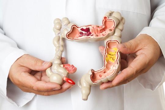 腸道健康響警號 排便改變要留神