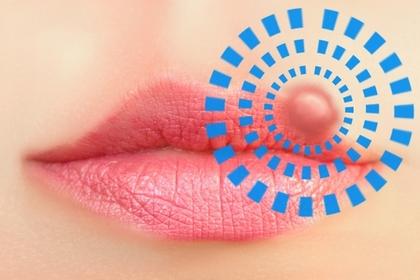 唇瘡病毒是甚麼?教你如何防止唇瘡復發