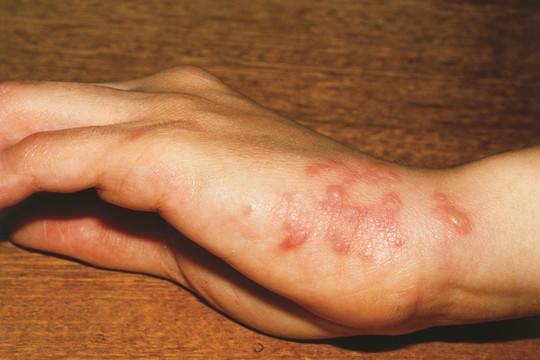 年老一定多病痛? 疫苗助長者「無痛」生活!