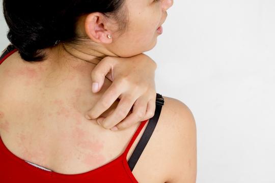 濕疹戒口5大原則