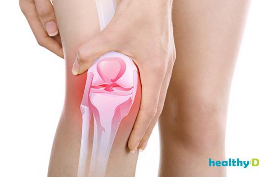 【痛仲要郁?】運動強化肌肉 抗退化性關節炎1