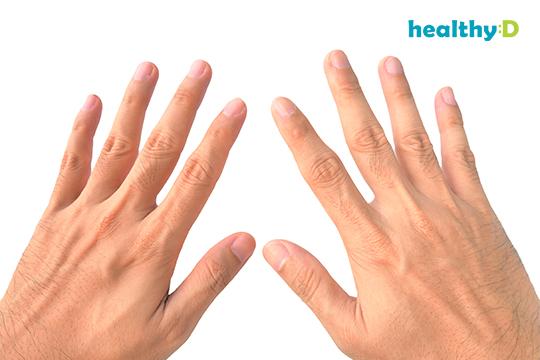 醫生解迷思:手指啪得多會變粗?2