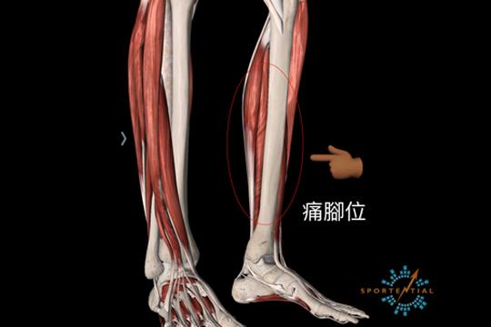 【運動訓練】脛骨痛可大可小!1