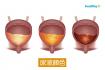 小百科:從尿液看健康