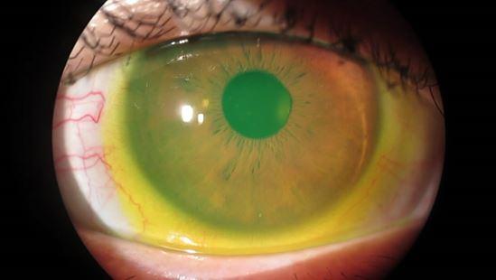 乾眼症女性長者多 眼科視光師講解治療及處理方法