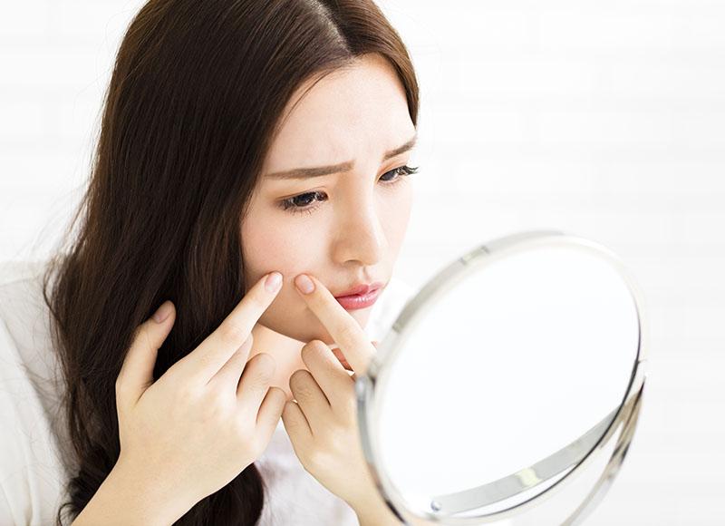 中醫解構臉部暗瘡位置 反映身體各種問題