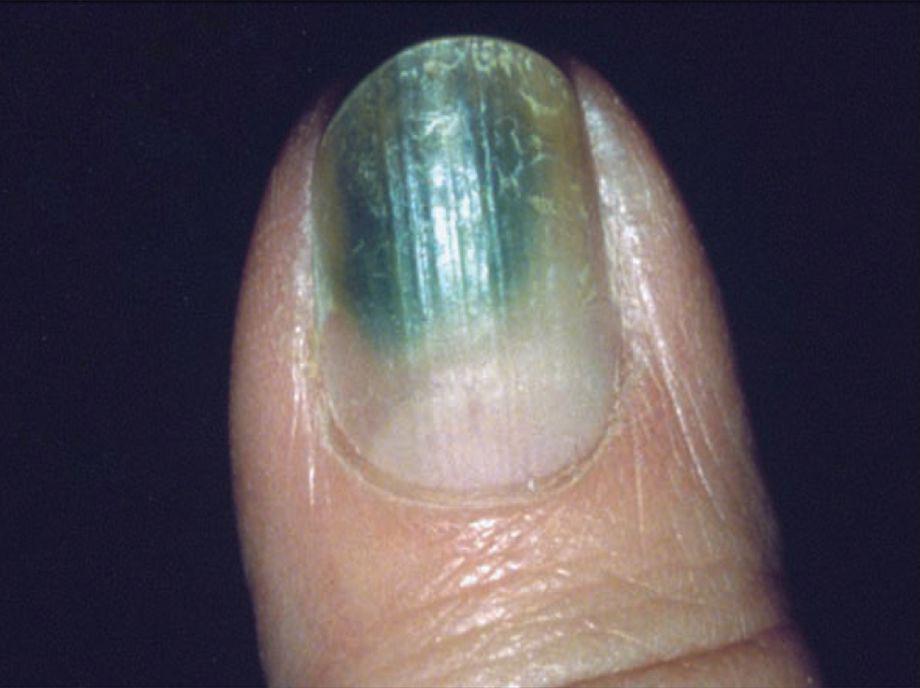 美甲忽略危險陷阱 或變恐怖「綠指甲」?