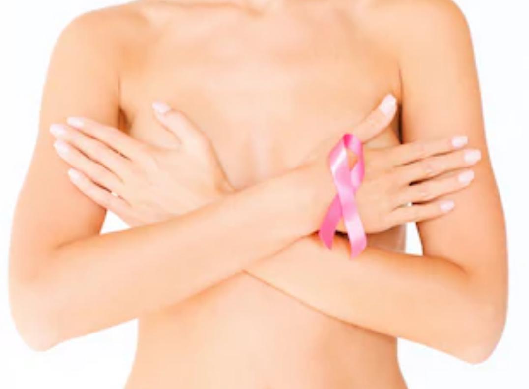醫生分享:乳癌患者應電療還是化療?