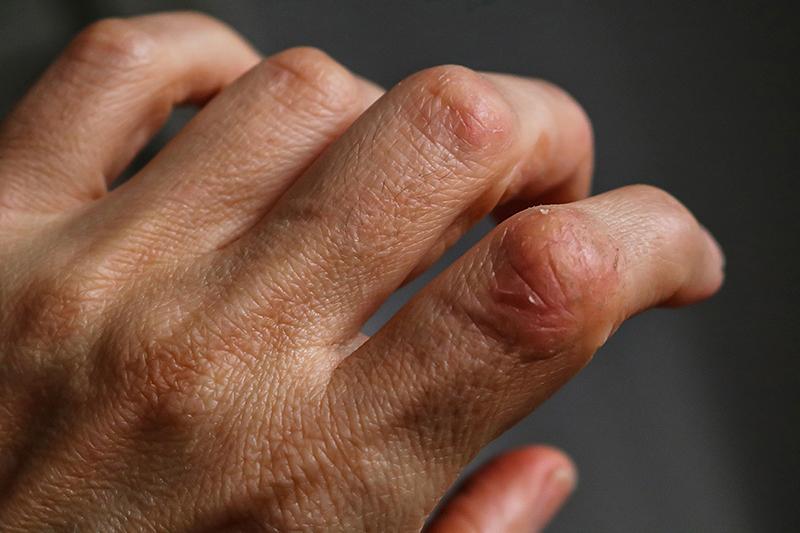 9成銀屑病患者曾受歧視 病人:自己像「科學怪人」