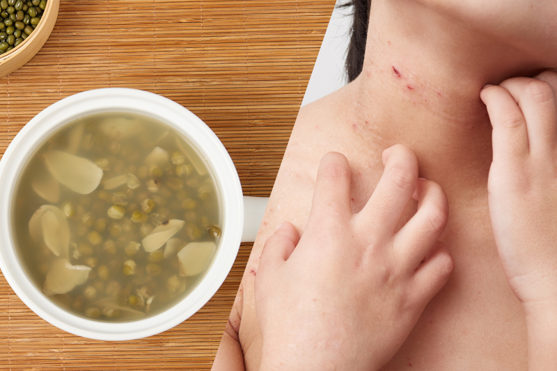 轉季皮膚痕癢?10個紓緩濕疹湯水食療合集