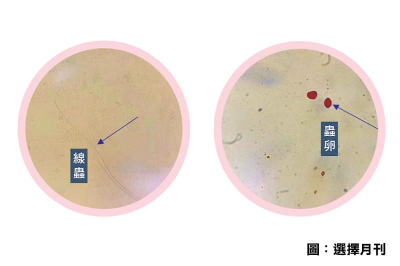 消委會測試:元氣樣本含線蟲及蟲卵 建議計劃懷孕婦女1年前勿進食水銀含量高魚類