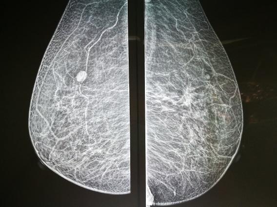 預防乳癌靠自摸?做足3大檢查不用愁