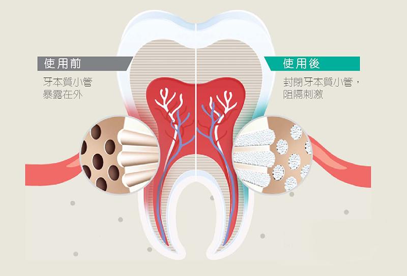 【牙醫教路】瑞士國民品牌牙膏 突破性科研技術護口腔