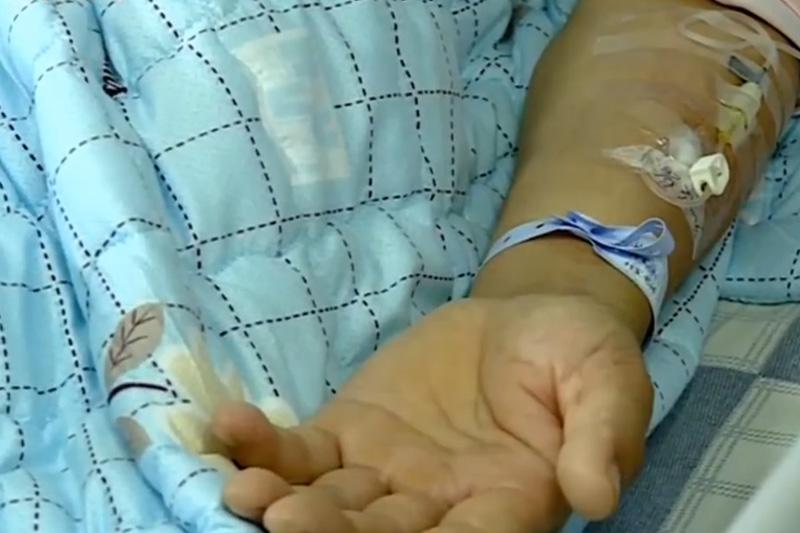 廣西女子處理豬肉時受傷染豬鏈球菌腦膜炎