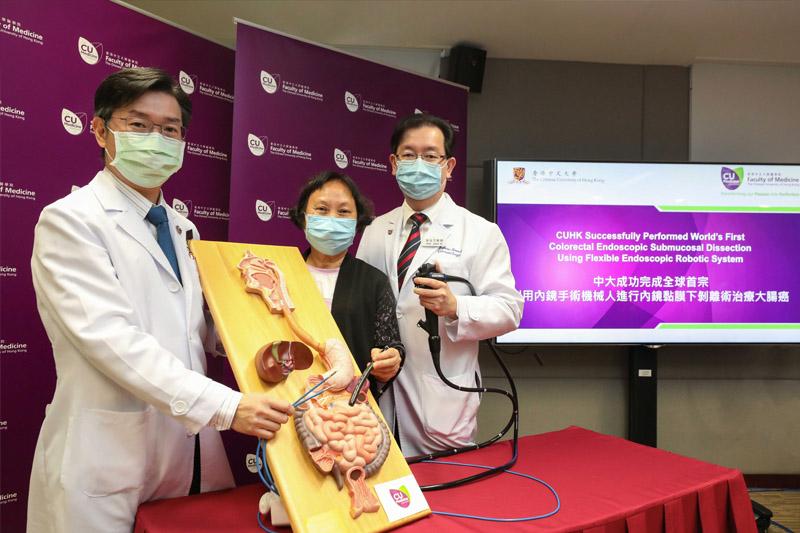 【大腸癌治療】全球首例!中大無創內鏡手術機械人治大腸癌