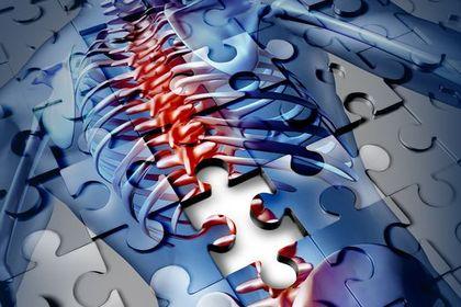 生物製劑發現 解救強直性脊椎炎共病困擾