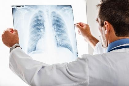 久咳不癒?小心肺癌已偷襲!
