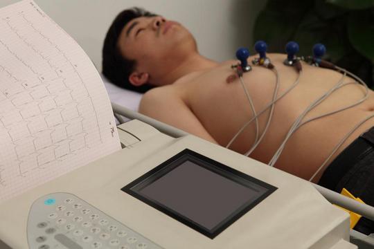 心電圖, ECG