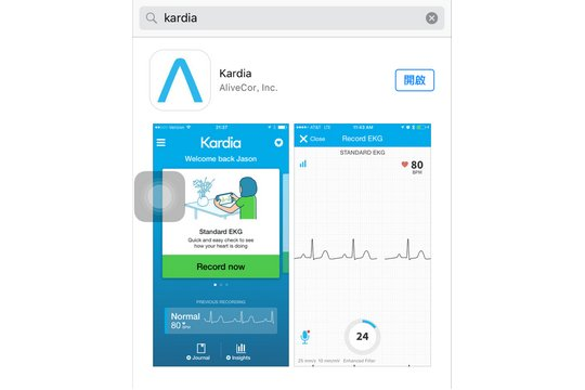 mobile ECG, 手提心電圖