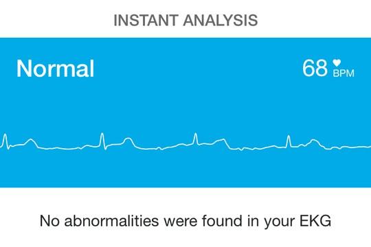 mobile ECG, 手提心電圖, 心率, 心電圖