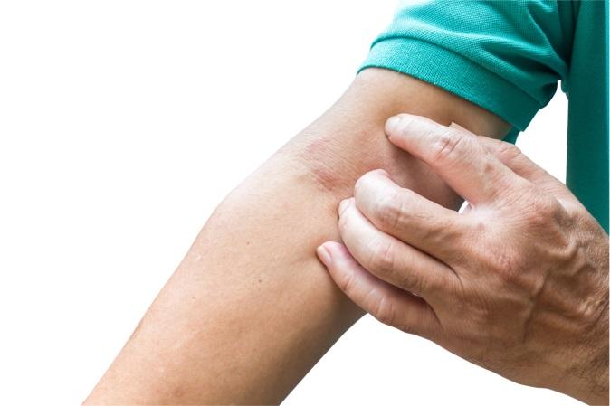 淋巴癌可在任何部位病發 長期胃痛皮膚癢或是淋巴癌警號