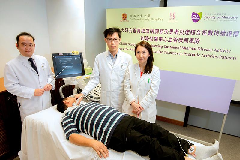 中大研究:控制銀屑病關節炎 可減心血管病風險
