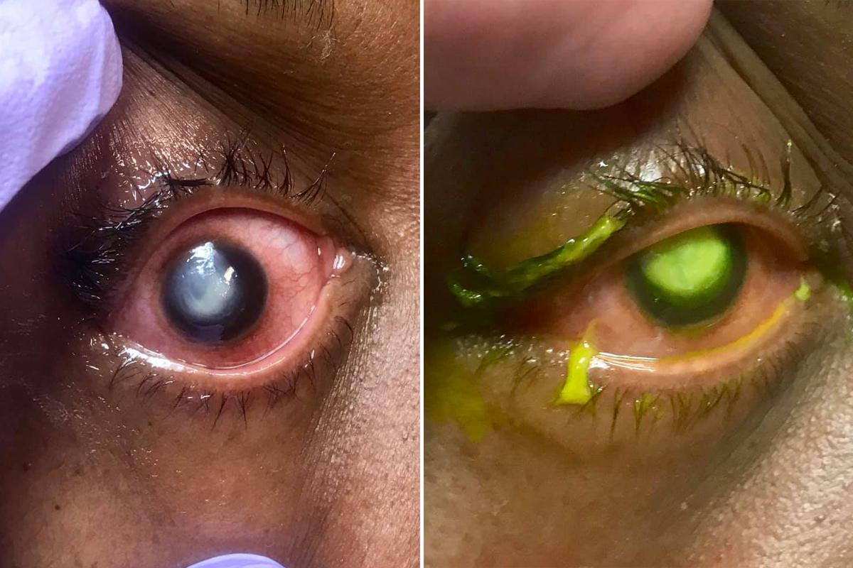 偷懶戴隱形眼鏡睡過夜 細菌侵蝕角膜含膿流螢光淚