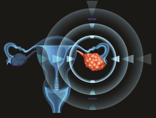 想知有冇患卵巢癌,有乜檢查可以做?