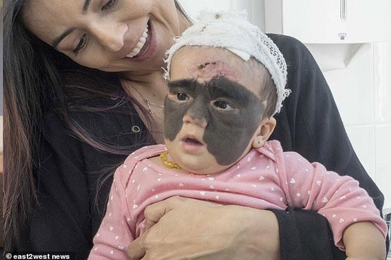 女嬰出生驚現巨型胎記 俄羅斯神醫以光動力療法成功清除