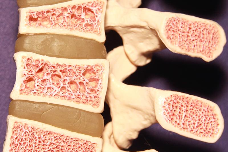 鈣質食物不能預防骨質疏鬆症?攝取微量礦物質提升骨質密度
