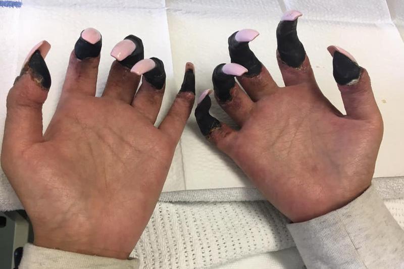 【腦膜炎】發高燒、噁心、紫斑是感冒嗎? 30歲女昏迷一周驚見四肢發黑須截肢