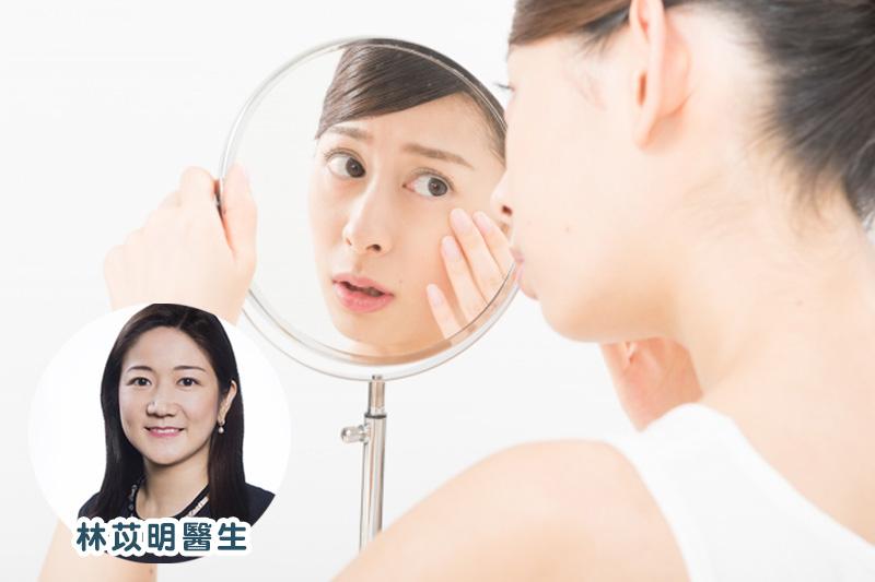 【眼部護理】汗管瘤該怎麼去除?醫生拆解成因及治療方法