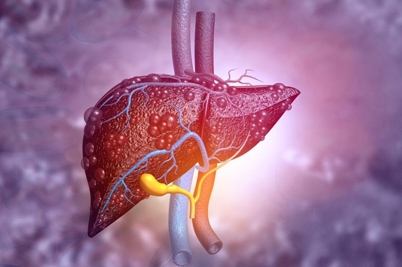 中大研究:本地新冠患者近2成人有肝受損 致病情惡化風險高8倍