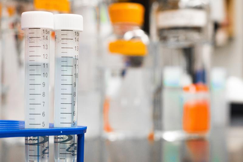 【新冠肺炎】港大發現兩種獨有新冠病毒蛋白的抗體 有助第二代抗體檢測