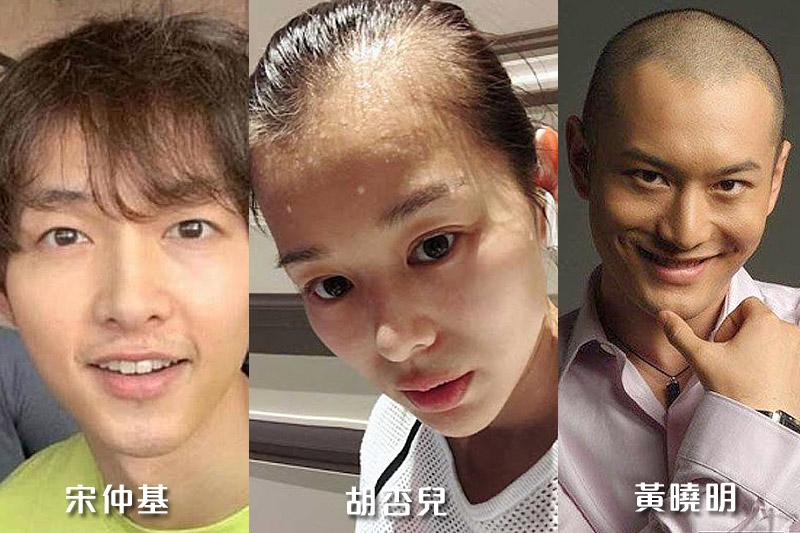 脫髮原因   韓國研究:每周工作52小時以上脫髮機率高2倍