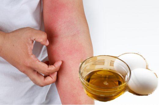 濕疹 | 蛋黃油可以醫濕疹?中醫師解說蛋黃油功效及作用