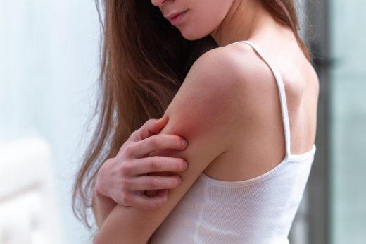 兒童濕疹 vs 成人濕疹|中醫拆解濕疹類型、治療方法