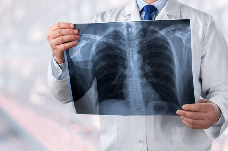 肺癌前兆|久咳不癒、持續胸痛?小心肺癌已偷襲!
